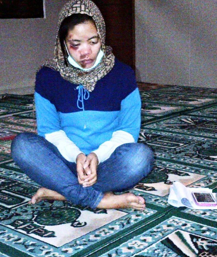 Kondisi saudari Vera Dewi Eliyati seusai menerima tindakan penganiayaan.